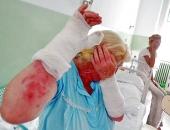 Sírtak az asszonyok a fájdalomtól: 50 napszámos égett meg